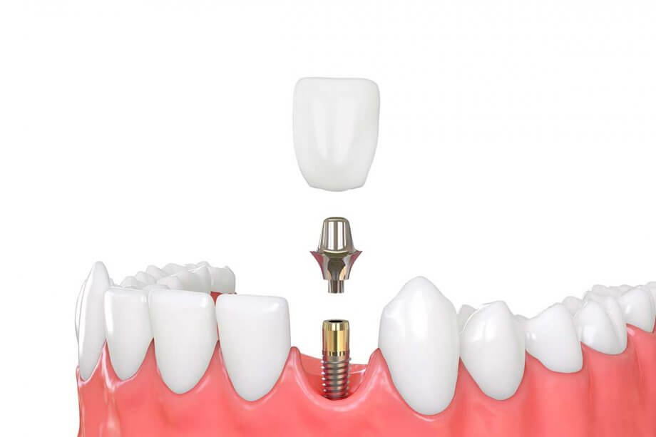 Dental Implant and Crown: Is This Combination Right for You?