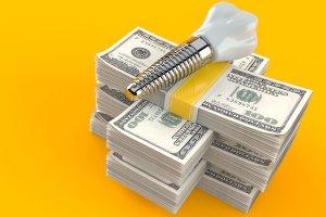 Dental Implant Financing Options