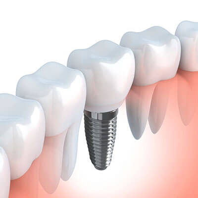 Implant Dentistry Westford MA