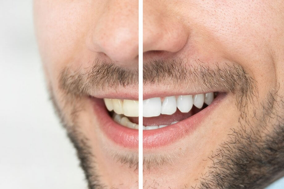 before and after picture of mouth with whitening