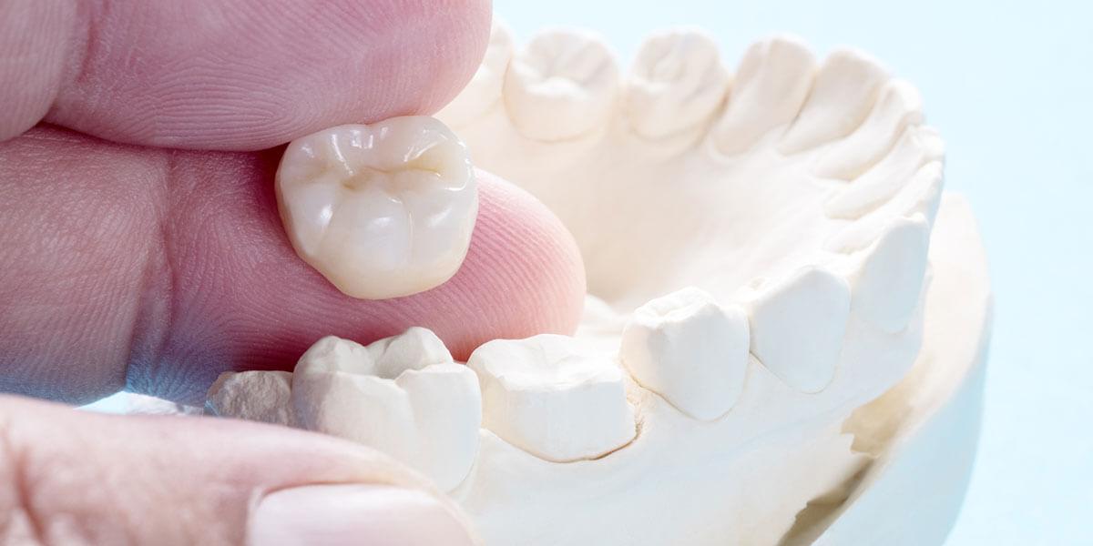 Dental Crowns in Westford, MA